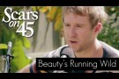 "Scars on 45 - ""Beauty's Running Wild"" Live Acoustic Session"